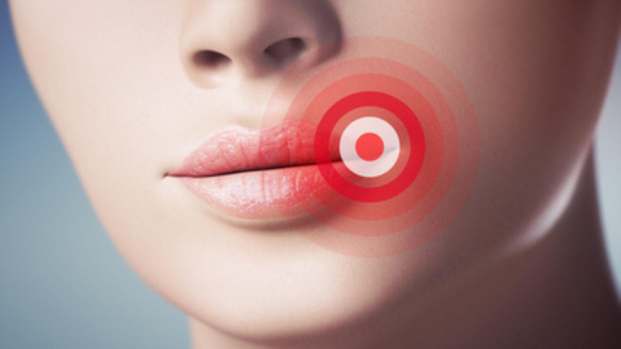 mit lippenherpes oralverkehr